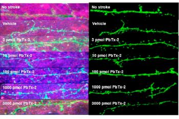 link to library blog - HyStem-HP Injection for Neural Repair